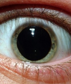 dilated pupil due to synthetic marijuana seizure